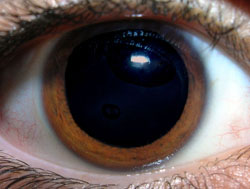 A healthy eye with a widely dilated pupil