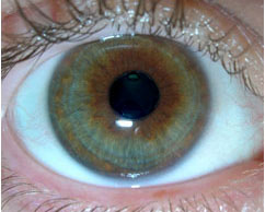 Normal pupil- prior to dilation