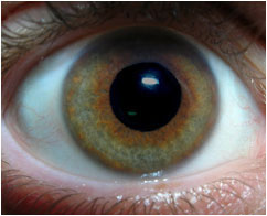 mid-dilated pupil in a green-brown eye