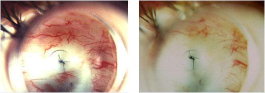 Volk Blumenthal Suturelysis Lens- blanching of blood vessels