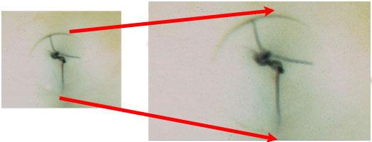 Volk Blumenthal Suturelysis Lens- suture seen under high magnification