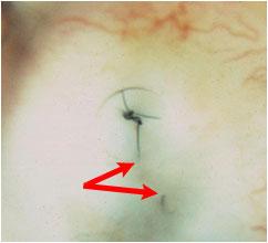 Volk Blumenthal Suturelysis Lens- broken suture seen with retracted ends