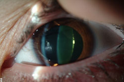 Early cataract seen as yellowing of the lens