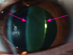 Arrows point to an early cataract seen as yellowing of the lens